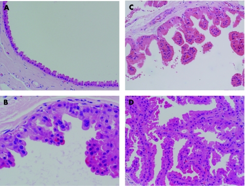 intraductalis papilloma apokrin metaplasia