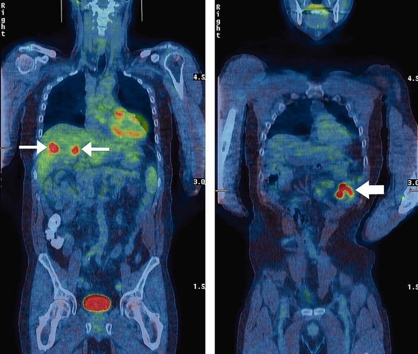 Kolorektális rák