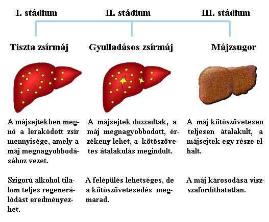 májrák daganat