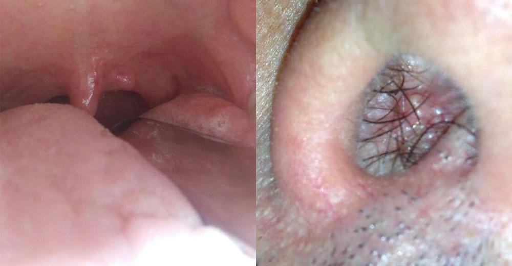 hpv papilloma esetén