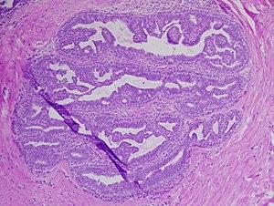 hpv nedir t o az emberi helminthiasis tüneteinek kezelése