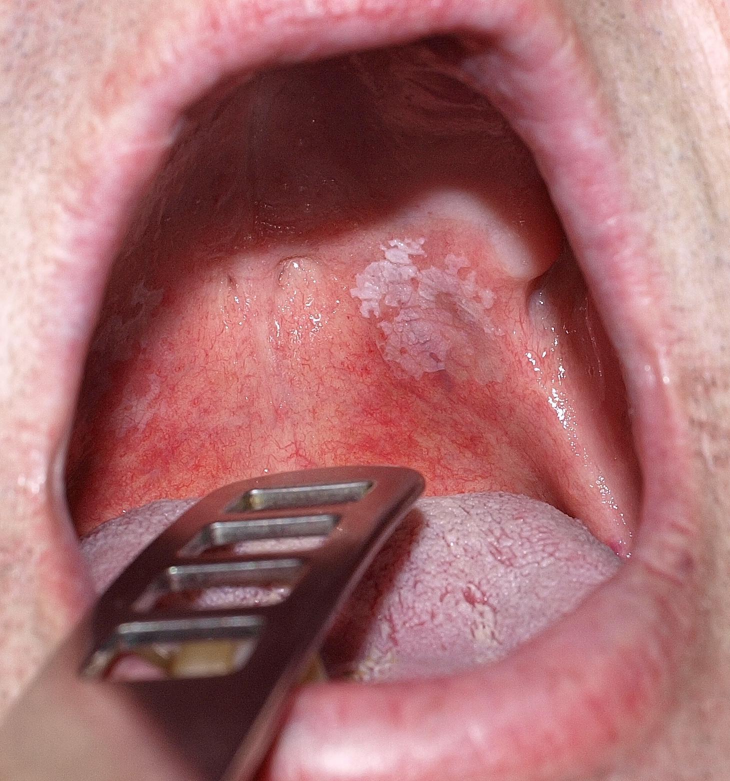 hogy néz ki az ajkak papilloma