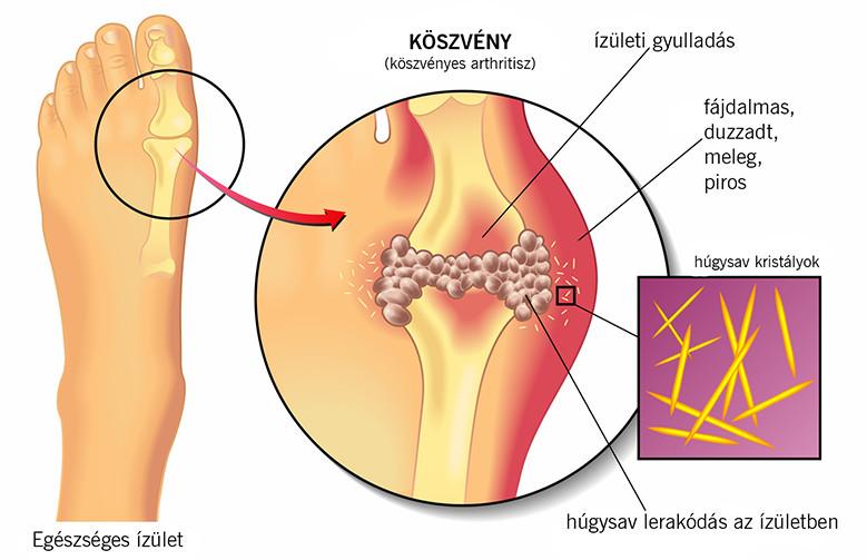 Felnőttek helmintikus invázióinak megelőzése A helmintikus férgek tünetei