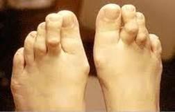 a lábujjak kezelése között növekszik Vastagbél méregtelenítő lé recept
