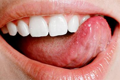a nyelvrák hpv pozitív bázisa