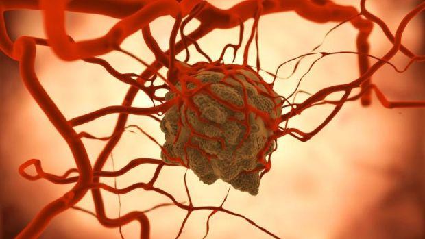 Hormonális fogamzásgátlók és a rák