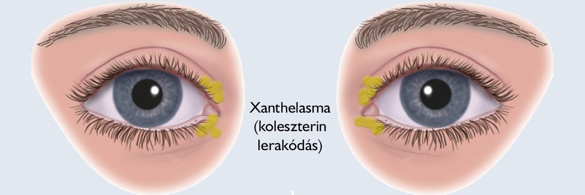papilloma orvos szemhéj parazita fertőzések emberben