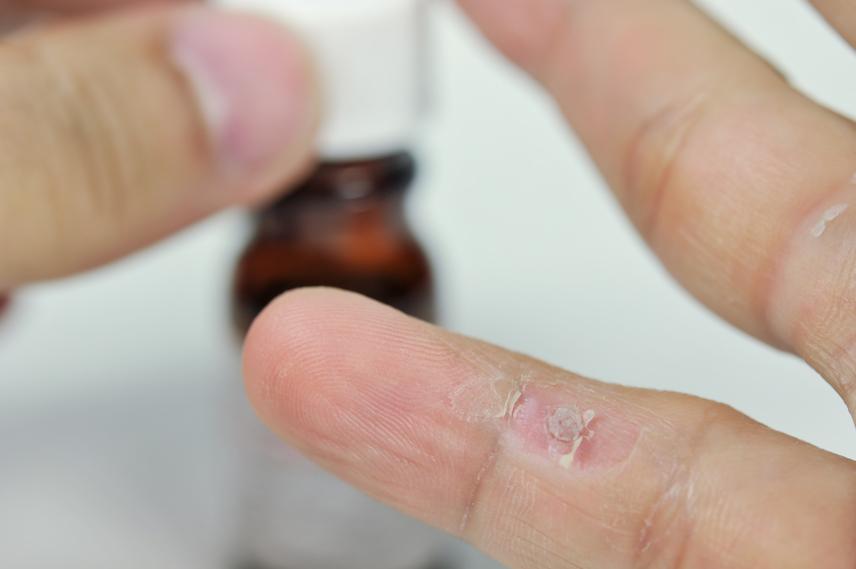 szemölcsök a kéz jele hiv