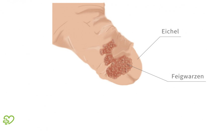 Giardia meaning in urdu - Hpv 16 virus mann