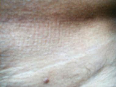 Papiloma humano en hombres. Account Options - Anemie jak leczyc Papiloma irkutsk