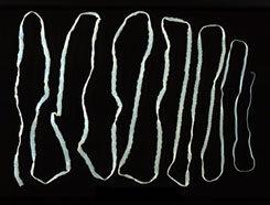 zöldségek giardiasis esetén szemölcs vírus család