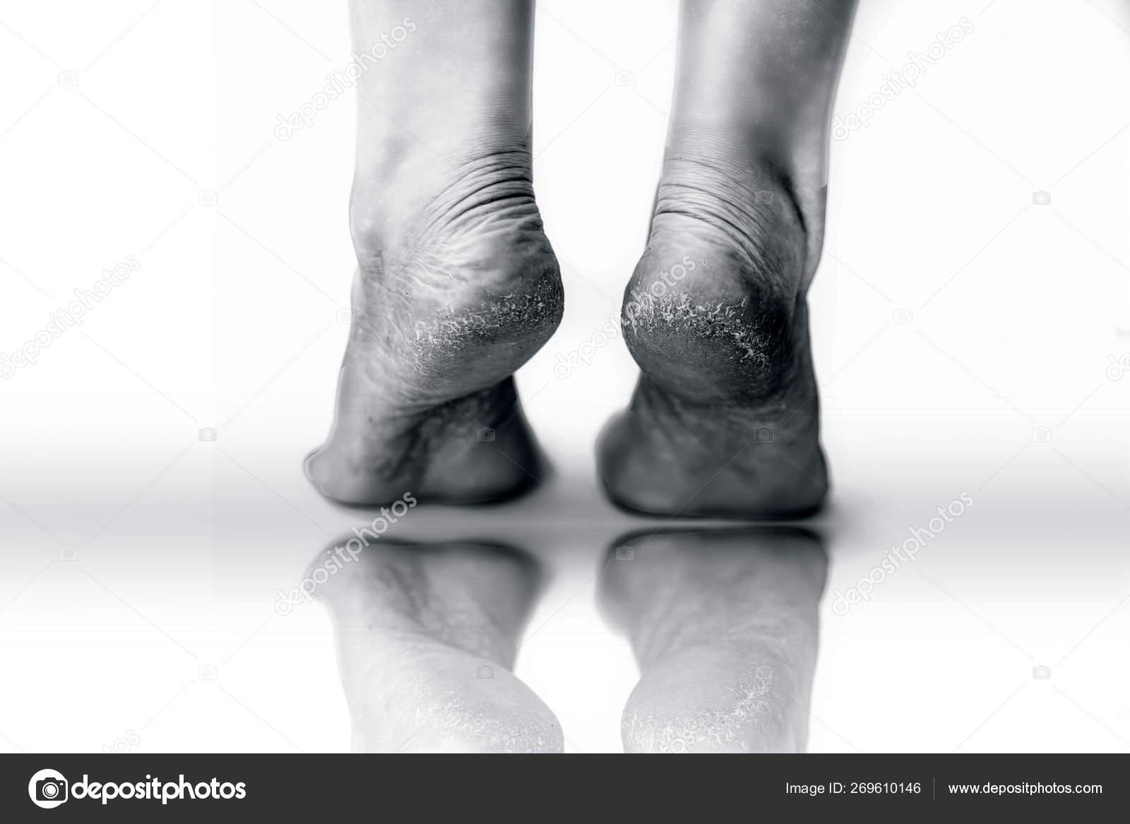 lábszemölcs fekete