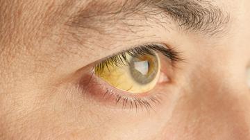hasnyálmirigyrák tünetei a legjobb thc méregtelenítő kiegészítő