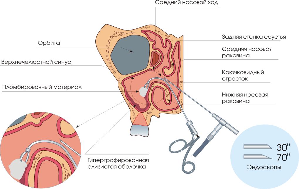 Intraductalis papilloma, egy jóindulatú emlődaganat