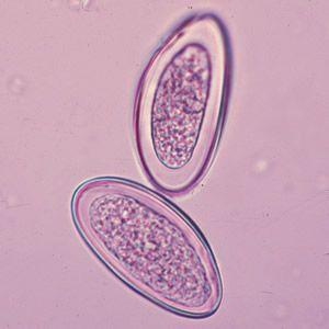 oxyuris vermicularis cdc