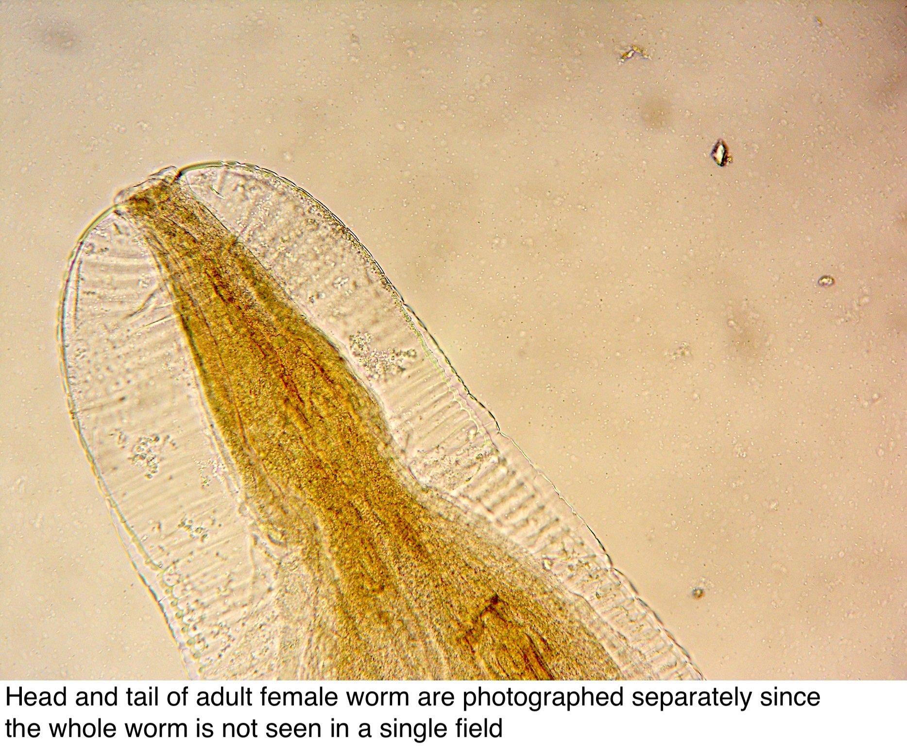 enterobius vermicularis fiziológia