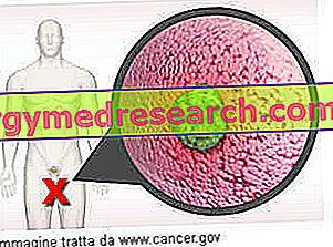 agresszív rák meghatározza amelyet a pinwormok eltávolítására tudok venni