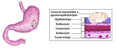 gyomorrák genetikai