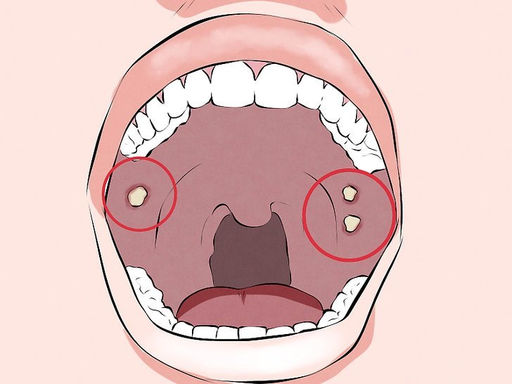 papillomavírus munnen