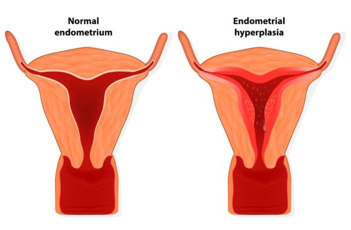endometrium rák és endometriosis