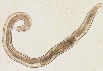 enterobius vermicularis adalah