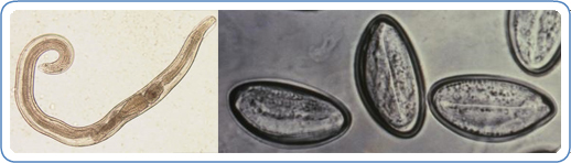 enterobius vermicularis cdc