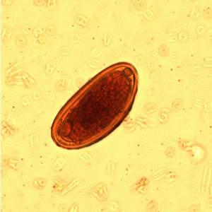 Enterobiosis etiológia - Miért veszélyes a bika szalagféreg?