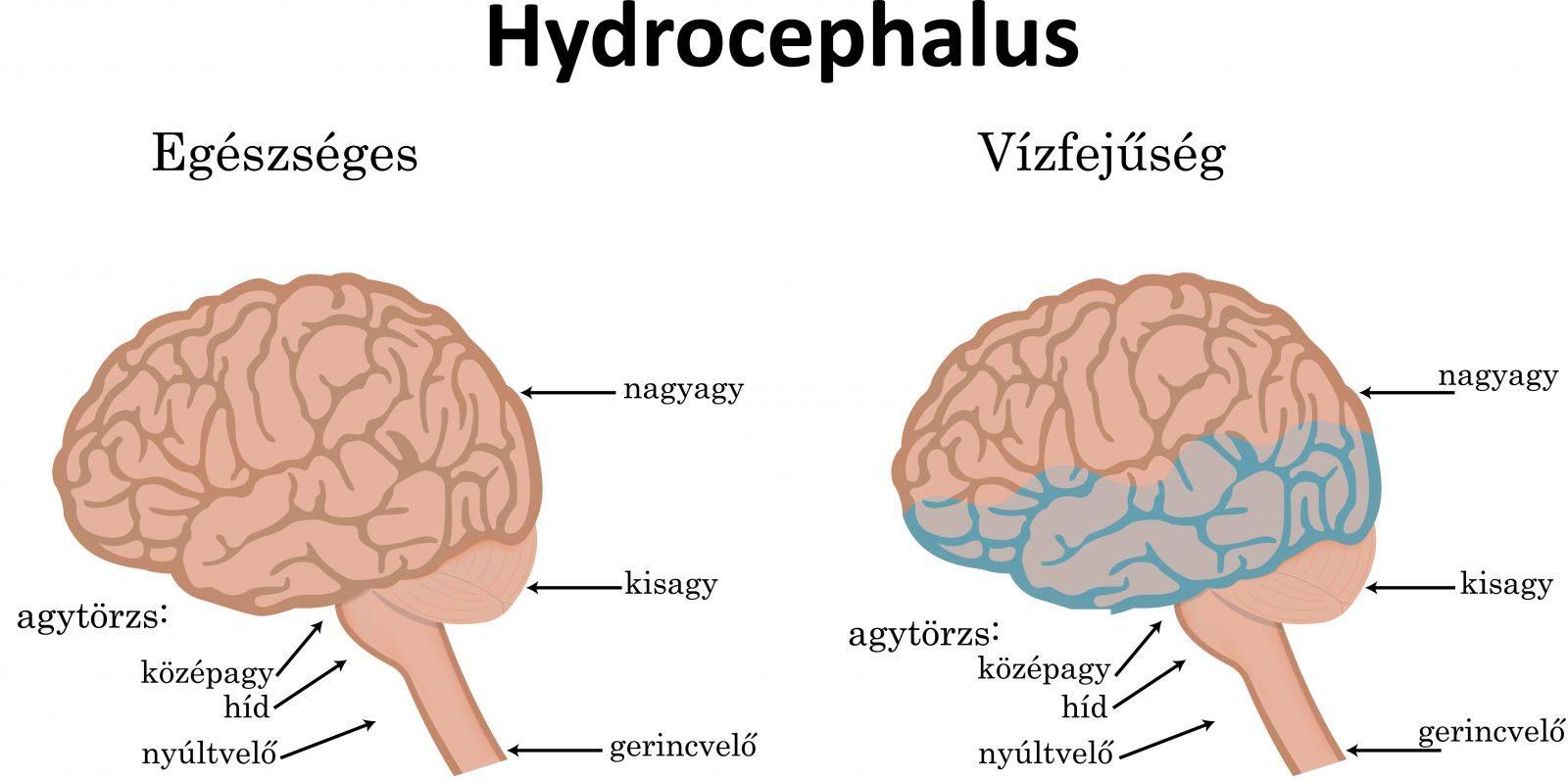 triocephalus betegség
