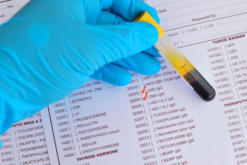emberi papillomavírus fertőzés hiánya