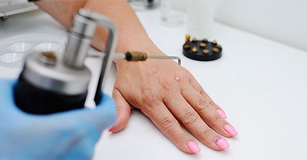 gyógyító szemölcsök eltávolítva humán papillomavírus elleni vakcina icd 10