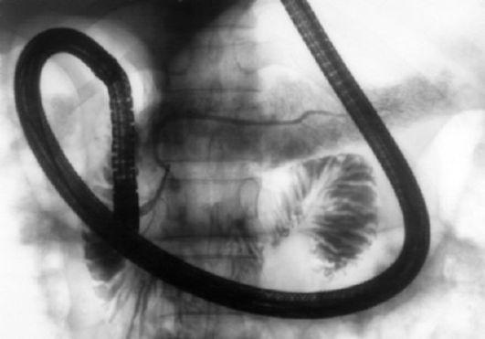 Hasnyálmirigy tumor - Szövődmények