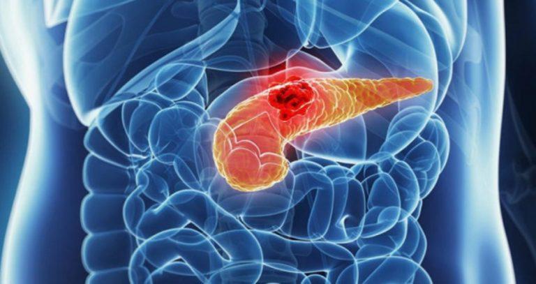 hasnyálmirigyrákot okoz paraziták az agy tünetein
