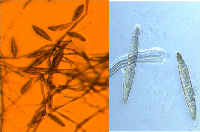 helminthosporium turcicum következő generációs féregkészítmények