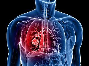 helmintusok a tüdő kezelésében