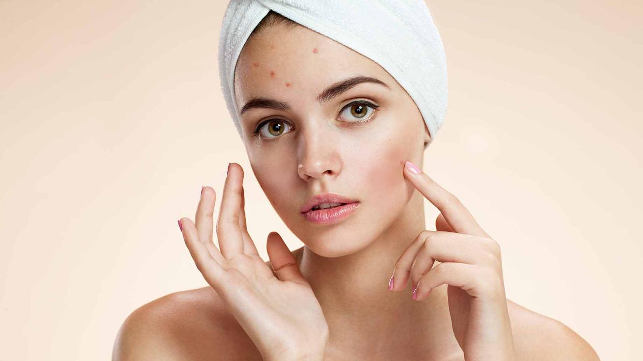 Pattanásos bőr: jó tesz a napsütés?