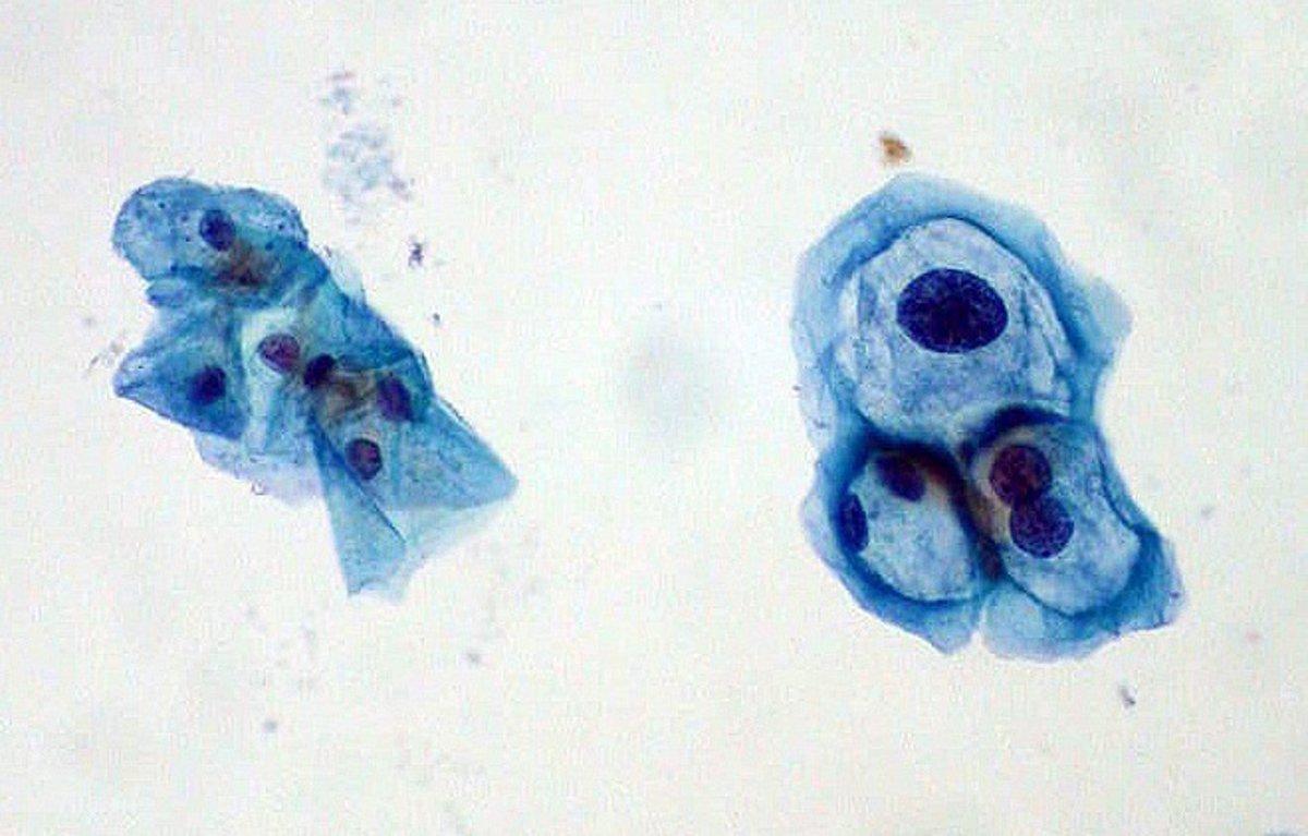 cauterization szemölcsök kóros pap kenet citológia