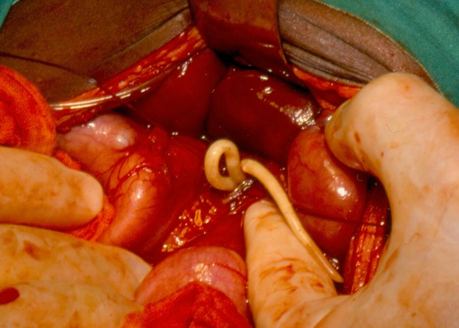 invázió helminthiasis helminthias pinwormok, amelyek esznek