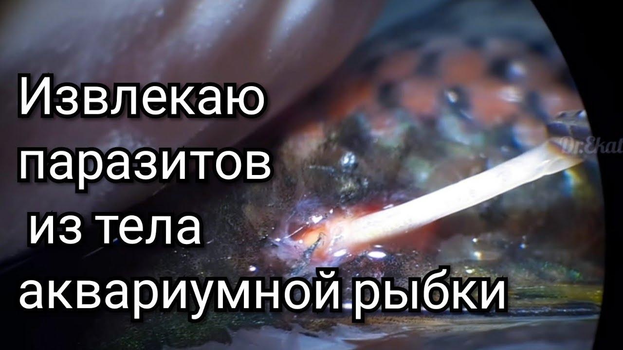 a parazita szanatórium testének tisztítása