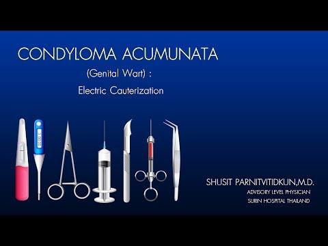 mi a condyloma a férfiaknál hpv fertőzés ujja