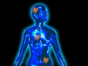 mit jelent a rosszindulatú rák