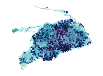 neuroendokrin rák kya hai