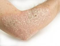 HPV-szűrés és tipizálás - hilltopfarm.hu