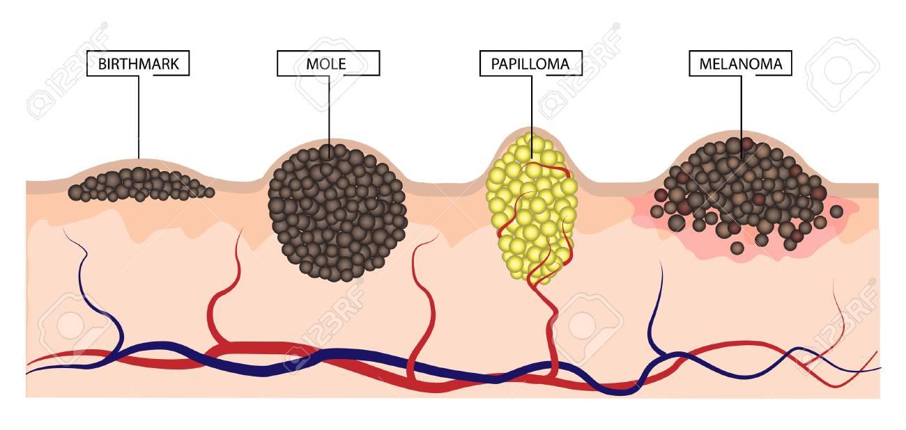 a vastagbélráknak van hpv impfung módon rki