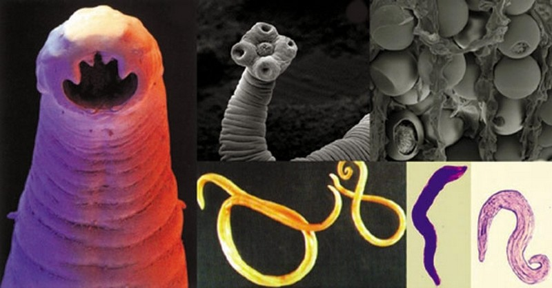 parazita v posteli A helmint komplex gyógyszer