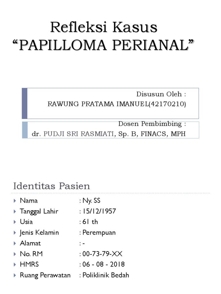 perianalis papilloma