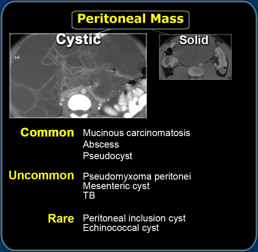 peritoneális rák biodekódolása