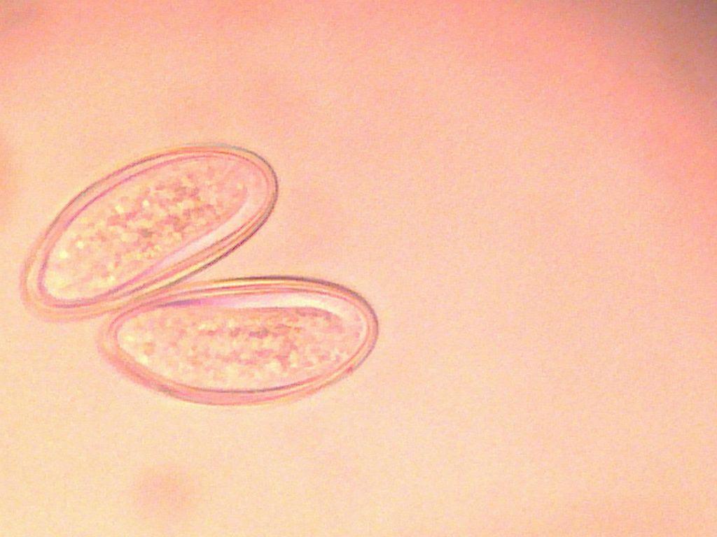 Pinworms kezelése: tünetek és gyógyszerek - Szövődmények March, Pinworm gastritis, Pinworms hányás