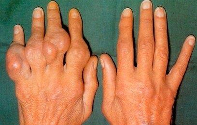 rák malignus szarkóma nutilon hasmenés 1