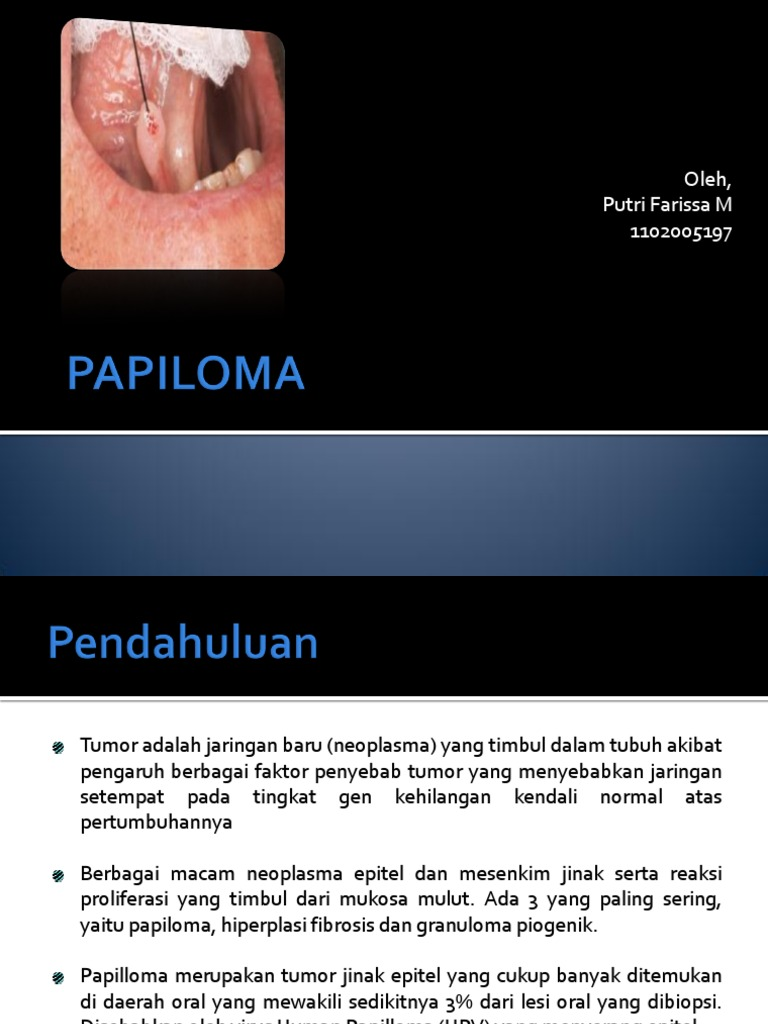 tumor papilloma adalah