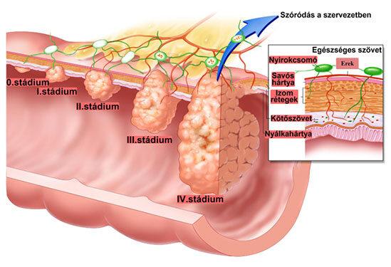 belső gyógymódok a vastagbél méregtelenítésére